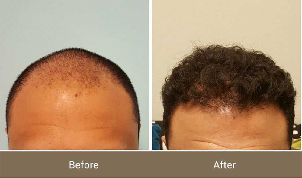 prp hår pris